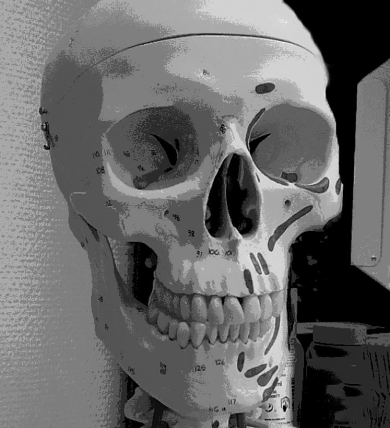 skelett1e wp