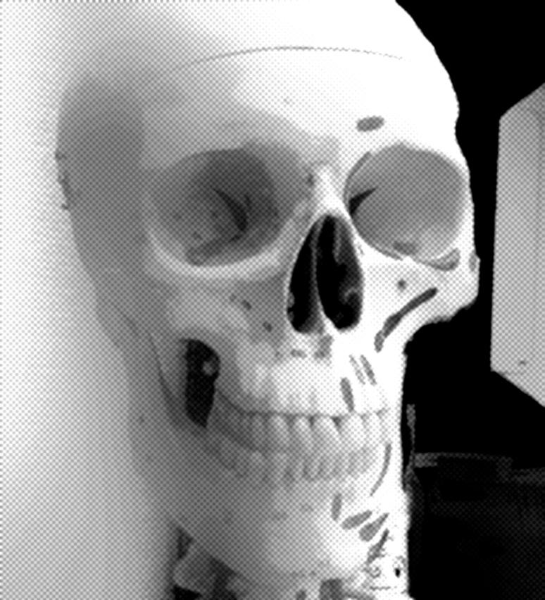 skelett1h wp