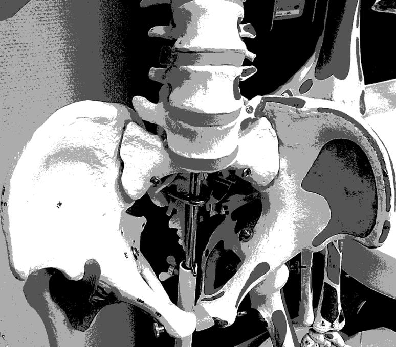 skelett2awp