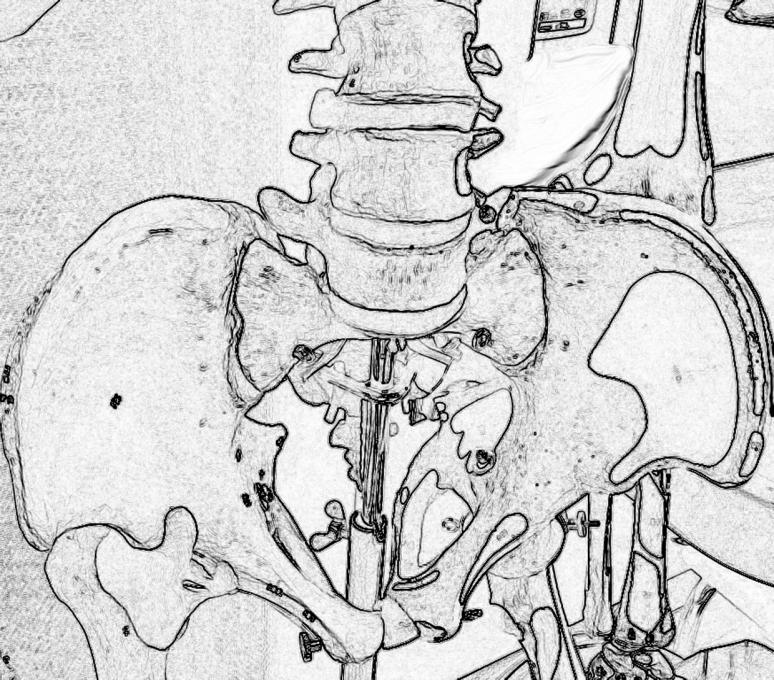 skelett2e-beckenwp
